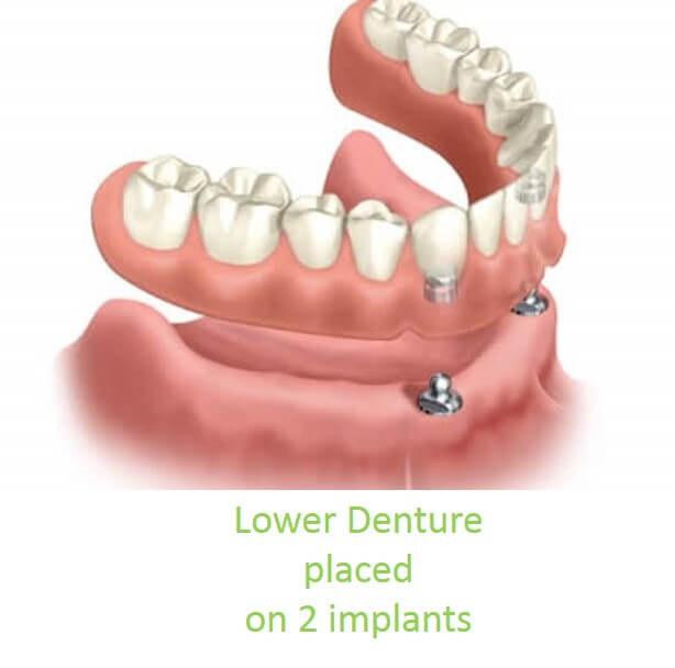 Denture over Implants Central London